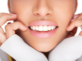 Proffessional Teeth Whitening Only $99, 101 Darley Beauty Collective, Mona Vale