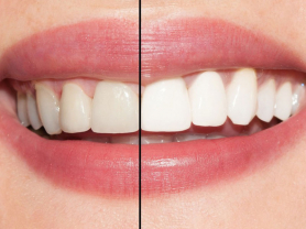 Up To 8 Shades Whiter Teeth in 60 Mins!, Think Local Deal, North Shore Dentistry